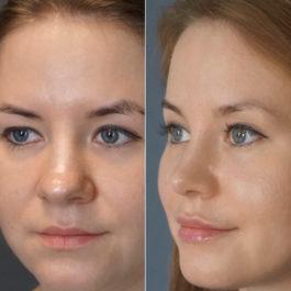 Закрытая ринопластика корректирующая кончик носа , септопластика , эндоскопическая подтяжка лба и бровей , 2 месяца после операции.