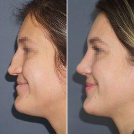 Реконструкция носа с забором хряща из ребра , септопластика , 1 месяц после операции.