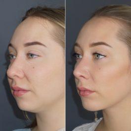 Коррекция кончика носа , септопластика , ментопластика, 1 месяц после операции.